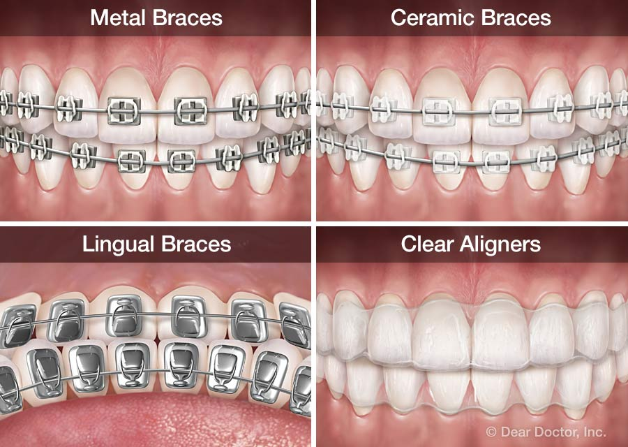 Types of orthodontic appliances.